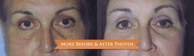 blepharoplasty-before-after
