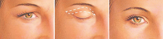 upper eyelid incision