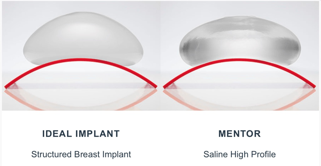 saline vs ideal implant