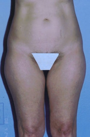 Liposuction Before & After Patient #4833