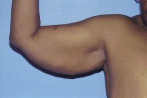 Brachioplasty Before & After Patient #4828