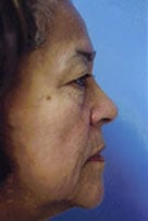Facelift / Blepharoplasty Before & After Patient #4740