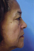 Facelift / Blepharoplasty Before & After Patient #4740