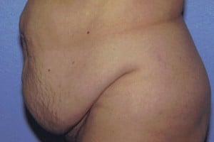 Tummy Tuck Before & After Patient #4850