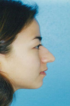 Rhinoplasty Before & After Patient #4786