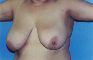 Breast Lift Before & After Patient #5007