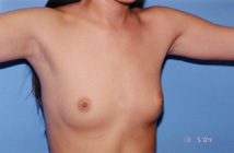 Breast Augmentation Before & After Patient #4909