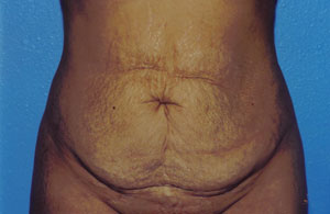 Tummy Tuck Before & After Patient #4855