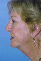 Facelift / Blepharoplasty Before & After Patient #4750