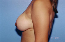 Breast Lift Before & After Patient #5014