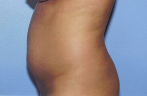 Liposuction Before & After Patient #4836