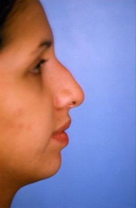 Rhinoplasty Before & After Patient #4789