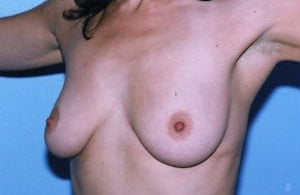 Breast Augmentation Before & After Patient #4916