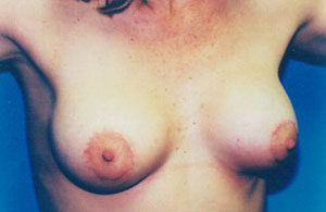 Breast Lift Before & After Patient #5021