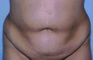 Tummy Tuck Before & After Patient #4862