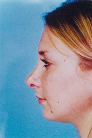 Rhinoplasty Before & After Patient #4796
