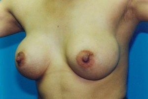 Breast Augmentation Before & After Patient #4927