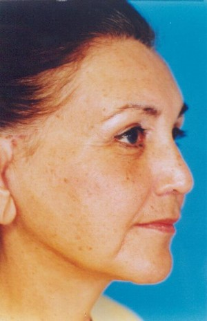 Facelift / Blepharoplasty Before & After Patient #4759