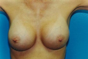Breast Augmentation Before & After Patient #4934