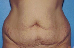 Tummy Tuck Before & After Patient #4869