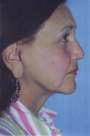 Facelift / Blepharoplasty Before & After Patient #4768