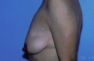 Breast Lift Before & After Patient #5026