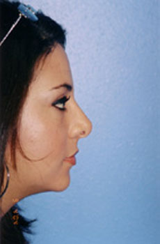 Rhinoplasty Before & After Patient #4803