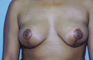 Breast Lift Before & After Patient #5035