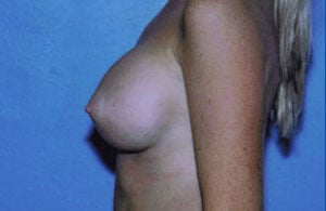 Breast Augmentation Before & After Patient #4941