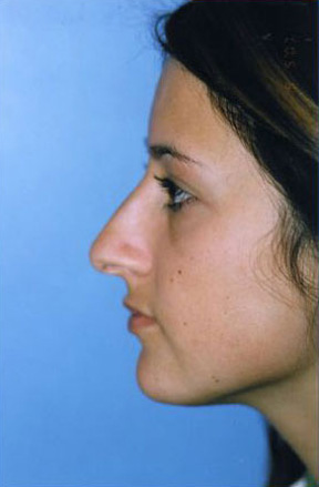 Rhinoplasty Before & After Patient #4812