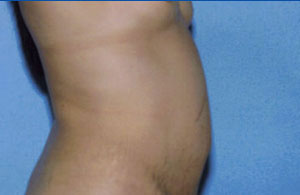 Tummy Tuck Before & After Patient #4874