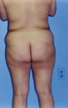 Tummy Tuck Before & After Patient #4881