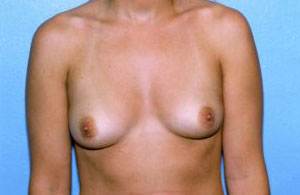 Breast Augmentation Before & After Patient #4948