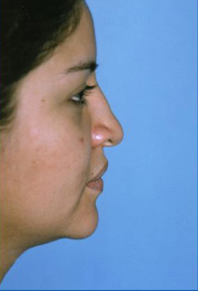 Rhinoplasty Before & After Patient #4821