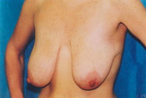 Breast Lift Before & After Patient #5042