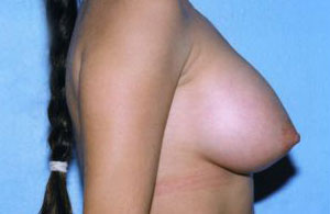 Breast Augmentation Before & After Patient #4953