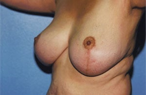 Breast Lift Before & After Patient #5047