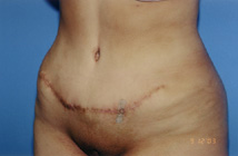 Tummy Tuck Before & After Patient #4889