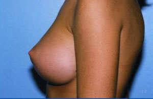 Breast Augmentation Before & After Patient #4962