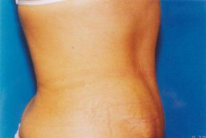 Tummy Tuck Before & After Patient #4899