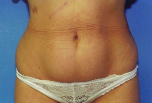 Tummy Tuck Before & After Patient #4904