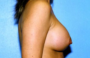 Breast Augmentation Before & After Patient #4969