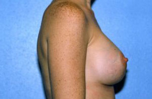 Breast Augmentation Before & After Patient #4976
