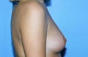 Breast Augmentation Before & After Patient #4983