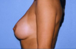 Breast Augmentation Before & After Patient #4988