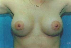 Breast Augmentation Before & After Patient #4993