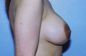 Breast Augmentation Before & After Patient #5000